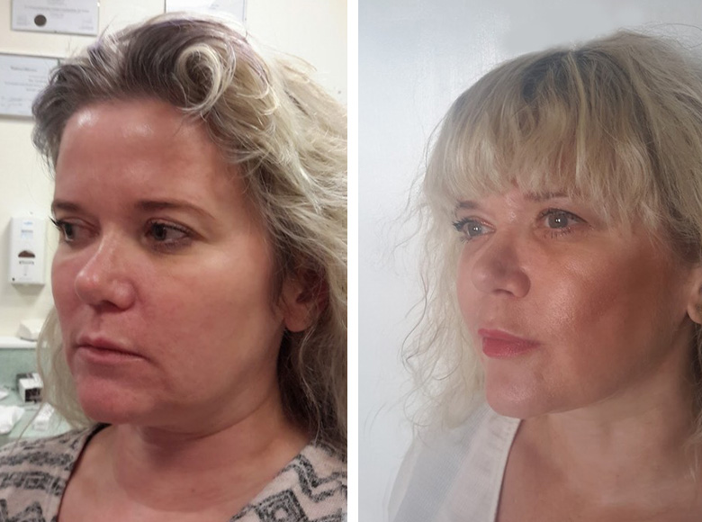 Thread Face Lift before & after Ipswich, Norwich, Colchester & Bury St Edmunds.