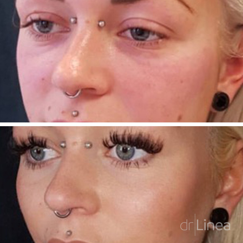 Check Dermal Fillers Before & After, Ipswich, Norwich, Colchester & Bury St Edmunds.