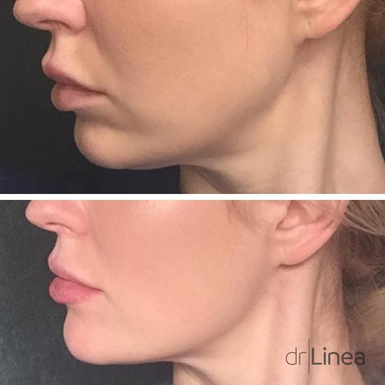 Chin dermal filler Before & After Ipswich, Norwich, Colchester & Bury St Edmunds.