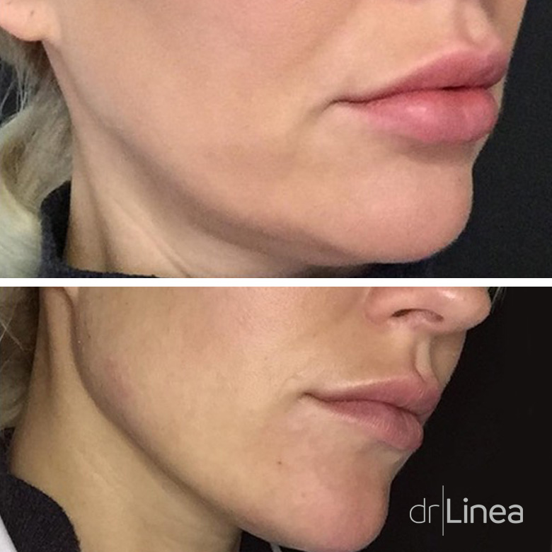 Jaw line dermal filler before & after Ipswich, Norwich, Colchester & Bury St Edmunds.