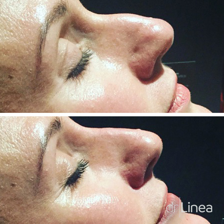 Dermal filler rhinoplasty before & after Ipswich, Norwich, Colchester & Bury St Edmunds.